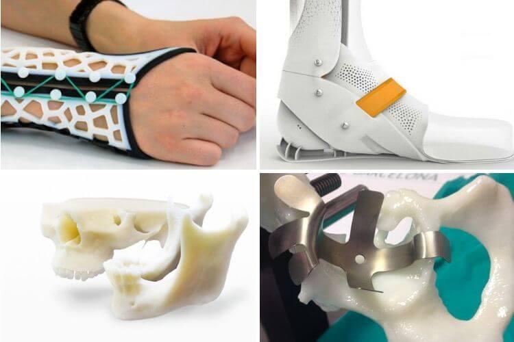 Maquetas 3D prótesis